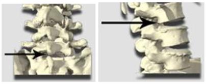 herniated disk, inter-laminar pain